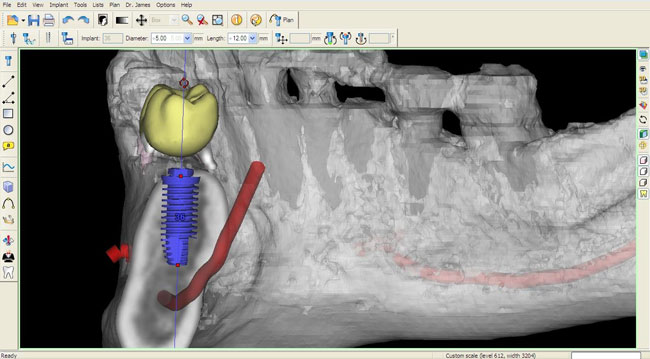 Imagerie simplant de cas d'implant dentaire